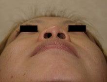 日本美容外科学会認定専門医Dr.石原の診療ブログ~いろんなオペやってます~-鼻翼縮小