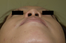 日本美容外科学会認定専門医Dr.石原の診療ブログ~いろんなオペやってます~-鼻翼縮小 後