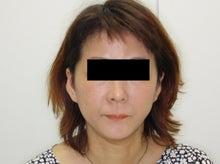 シンシア~Sincerely Yours 銀座の美容外科・美容皮膚科-フェイスリフト 口コミ 名医 安い