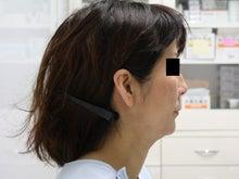 シンシア~Sincerely Yours 銀座の美容外科・美容皮膚科-フェイスリフト 口コミ 名医 激安
