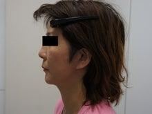 シンシア~Sincerely Yours 銀座の美容外科・美容皮膚科-フェイスリフト 口コミ 傷