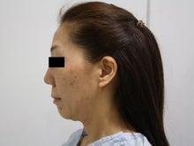 シンシア~Sincerely Yours 銀座の美容外科・美容皮膚科-フェイスリフト 口コミ 効果 痛み