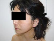 シンシア~Sincerely Yours 銀座の美容外科・美容皮膚科-フェイスリフト 安い