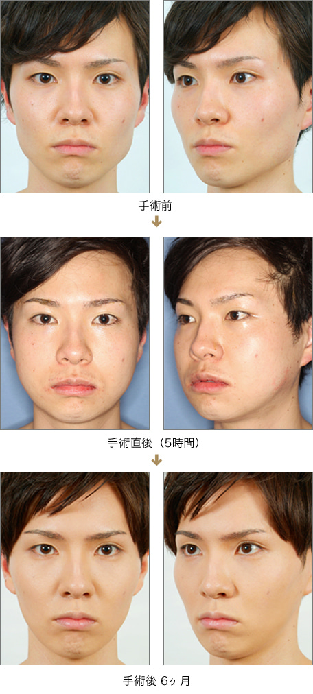 $リッツ美容外科東京院院長 広比利次Blog-症例_エラ_2011_0630