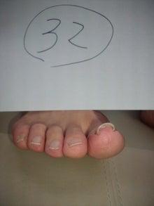 出張巻き爪矯正 B/S spange(スパンゲ)症例