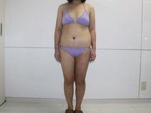 シンシア~Sincerely Yours 銀座の美容外科・美容皮膚科-全身脂肪吸引 劇的変化 名医 口コミ