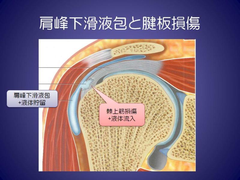 整形外科・スポーツ整形の画像診断・読影を学び、要点をついた撮影法を考える