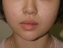 日本美容外科学会認定専門医Dr.石原の診療ブログ~いろんなオペやってます~-頬、あご脂肪吸引 正面 術後