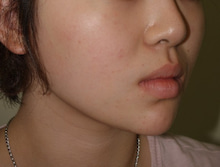 日本美容外科学会認定専門医Dr.石原の診療ブログ~いろんなオペやってます~-頬、あご脂肪吸引 横顔 術後