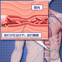 『まな美~の』 美しい人生を歩む-血行障害 イメージ図