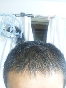 たつやの植毛体験記@湘南美容外科のブログ-110731_234425.jpg