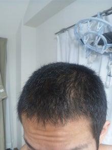 たつやの植毛体験記@湘南美容外科のブログ-110731_234504.jpg