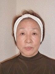 10年間化粧水いらず!小顔「ラフォンテ」愛知県名古屋西尾碧南サロン-五反さん1ビフォー