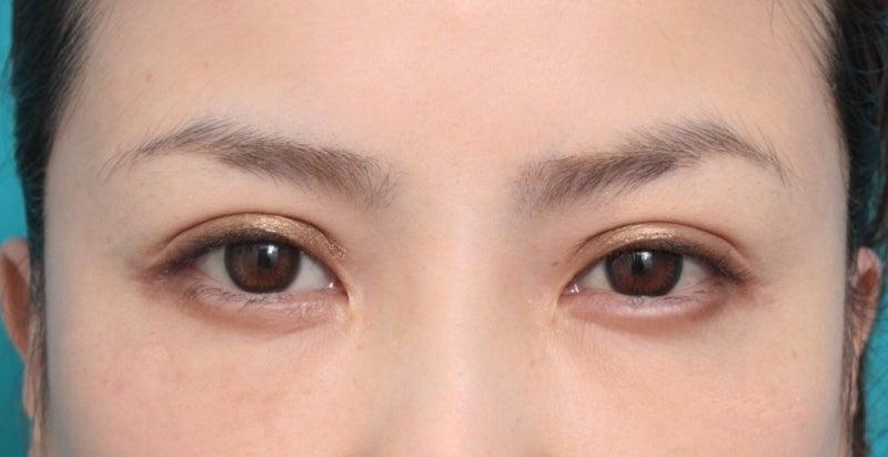 高須クリニック  高須 幹弥 オフィシャルブログ