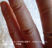 写真でパチリ 脱ステ&脱保湿 その真実に迫る-指