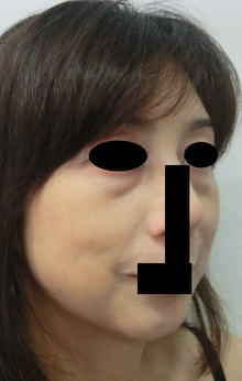 $豊胸・脂肪吸引なら大阪 の美容外科医 杉崎裕斗|湘南 美容外科 心斎橋 院-術前 斜め