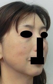 $豊胸・脂肪吸引なら大阪 の美容外科医 杉崎裕斗|湘南 美容外科 心斎橋 院-直後 斜め