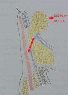 $豊胸・脂肪吸引なら大阪 の美容外科医 杉崎裕斗|湘南 美容外科 心斎橋 院-図2