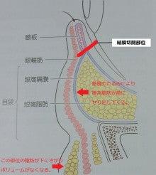 $豊胸・脂肪吸引なら大阪 の美容外科医 杉崎裕斗|湘南 美容外科 心斎橋 院-図1