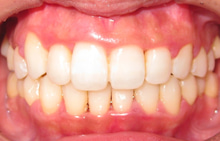 京都の矯正歯科 スタッフblog