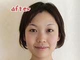 $顔のゆがみ解消!吉祥寺 『女性のための美容矯正ビアン・ネートル』