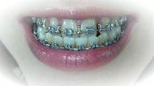 顎変形症~歯列矯正・外科手術~闘病記-DCF00419.jpg