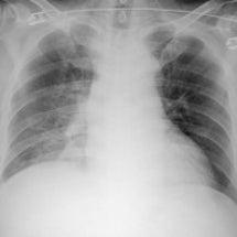 レジオネラ肺炎
