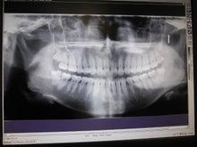 $Annaのブログ-teeth
