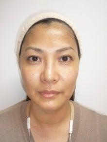 間違った美顔術はもう卒業!鹿児島県鹿児島市美顔サロン