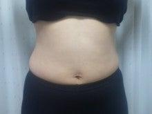 太もも、お腹まわりが気になる方は、簡単ダイエットの古河加圧トレーニング「古河、加須、幸手、小山」-image.png