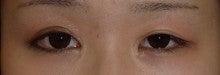 日本美容外科学会認定専門医Dr.石原の診療ブログ~いろんなオペやってます~-左切開法+目頭切開 他院修正