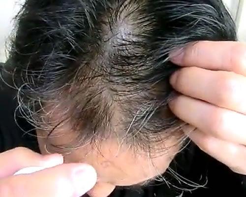 M-1育毛ミストが発毛に効く!育毛剤の効果と口コミ