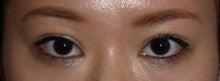 日本美容外科学会認定専門医Dr.石原の診療ブログ~いろんなオペやってます~-他院埋没後修正 術後