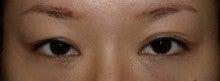 日本美容外科学会認定専門医Dr.石原の診療ブログ~いろんなオペやってます~-他院埋没後修正