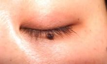 ルミガン体験記 ルミガンでまつ毛がフサフサになるかな-0221左目