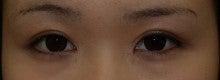 日本美容外科学会認定専門医Dr.石原の診療ブログ~いろんなオペやってます~-他院左二重+目頭切開 術後