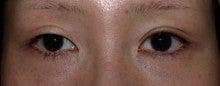 日本美容外科学会認定専門医Dr.石原の診療ブログ~いろんなオペやってます~-他院二重まぶた切開