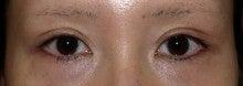 日本美容外科学会認定専門医Dr.石原の診療ブログ~いろんなオペやってます~-他院二重まぶた切開 術後