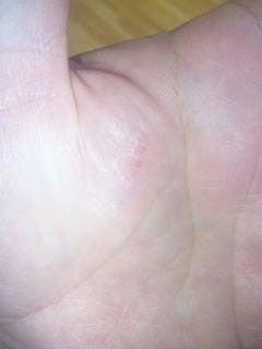 Dr.ミーヤンの下手っぴい釣りブログ-手の傷