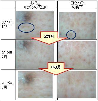 高岡でツヤ肌、健康美人サクララン-肌モニターさま201205-2