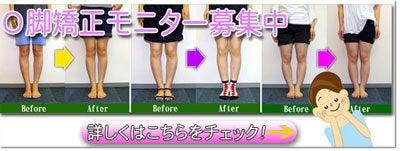 京都でO脚矯正 産後の骨盤矯正|京都の整体院 トオルカイロプラクティックセンター