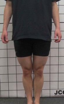 $西新宿 おくがわ整体院blog-O脚2