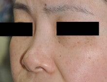 日本美容外科学会認定専門医Dr.石原の診療ブログ~いろんなオペやってます~-隆鼻+鼻翼縮小 術前2