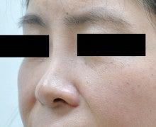 日本美容外科学会認定専門医Dr.石原の診療ブログ~いろんなオペやってます~-隆鼻+鼻翼縮小 術後1