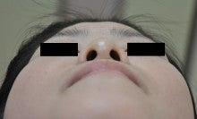 日本美容外科学会認定専門医Dr.石原の診療ブログ~いろんなオペやってます~-隆鼻+鼻翼縮小 術後2