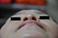 日本美容外科学会認定専門医Dr.石原の診療ブログ~いろんなオペやってます~-隆鼻+鼻翼縮小 術前1
