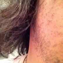 ヒゲ脱毛後、1週間が…