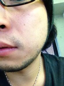 ヒゲ脱毛はじめました。-120622