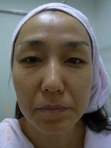 武蔵野皮フ科クリニックのブログ