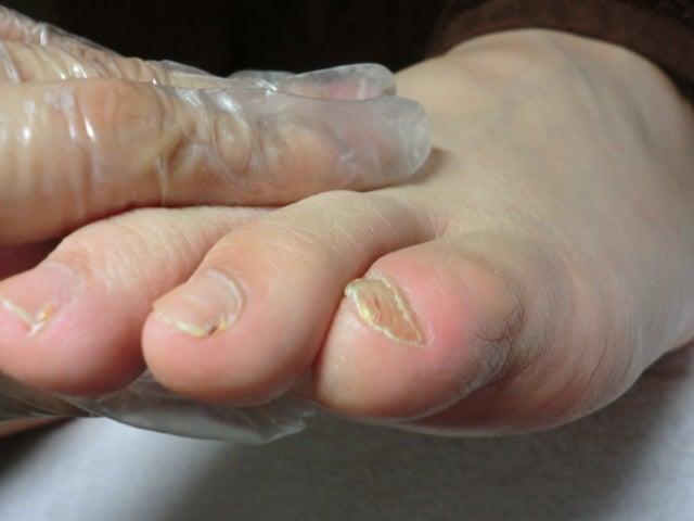 足のクリニック 表参道 | 足の専門病院